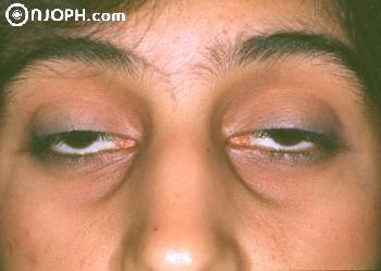 Some Pictures About Ptosis 6_105716174135_low