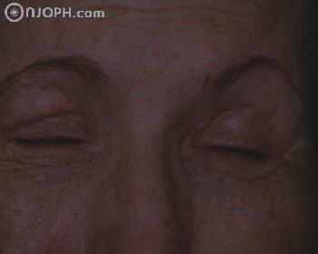 Some Pictures About Ptosis 6_105716205728_low