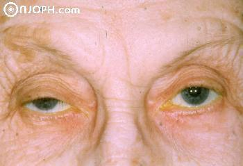Some Pictures About Ptosis 6_1057162111_low