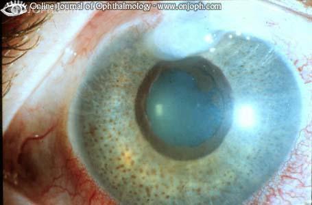 Atlas of Ophthalmology