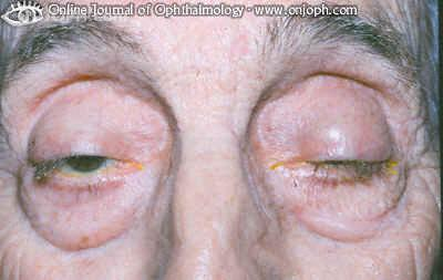 Some Pictures About Ptosis Rm331
