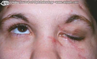 موسوعة متكامله عن امراض العين Rm333