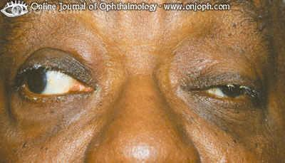 Some Pictures About Ptosis Rm334