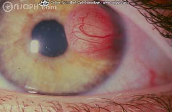 腫 若年 肉芽 性 黄色 軟部腫瘍の病理